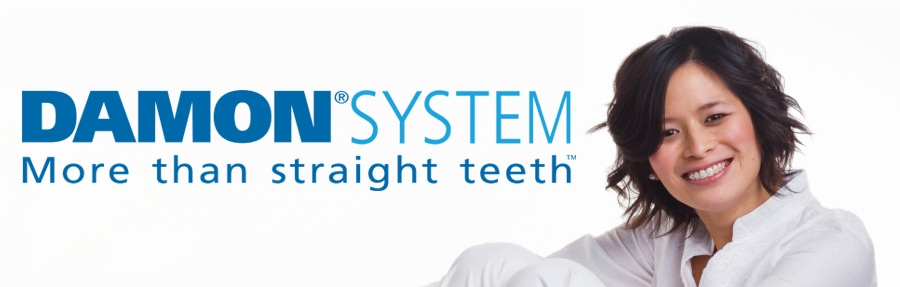 Damon System Orthodontic teeth straightening system at heaton Moor Dental Stockport Trafford