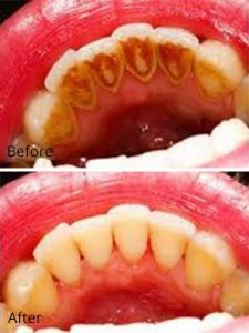 air flow teeth stain removal in stockport